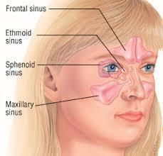 Sinus Treatment Melbourne: Curing Your Sinus Infection Naturally by Steve Danish | Nature Approach- Healing Body, Soul & Mind | Muscular Problem | Emotional Freedom Technique | Scoop.it