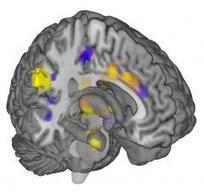 First objective measure of pain discovered in brain scan patterns by CU-Boulder study | University of Colorado Boulder | Social Neuroscience Advances | Scoop.it