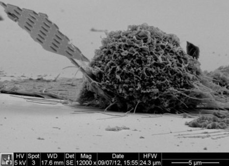 Researchers Plant Optical 'Bug' in Cancer Cells | Innovación Medica | Scoop.it