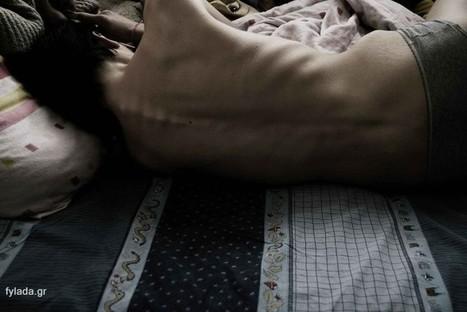 Η ιστορία μιας έφηβης που έπασχε από ανορεξία - fylada.gr | fylada.gr | Scoop.it