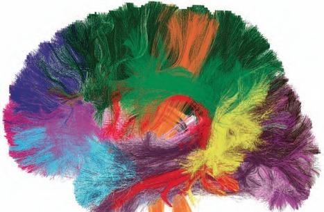 Pourquoi la conscience est toujours un acte tardif ?   Prévention de la santé et du stress.   Scoop.it