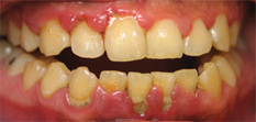Hydrogen peroxide in dentistry - RDH | Periodontal disease | Scoop.it
