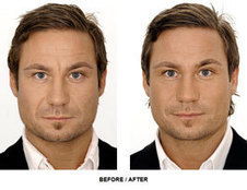 Botox - The Modern Fount of Youth | Beauty and Cosmetic Treatments | Scoop.it