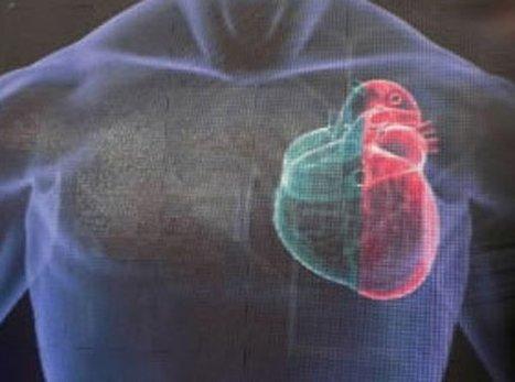 Una escala matemática frente a la insuficiencia cardíaca. Efesalud.com | busqueda de información medica en la web | Scoop.it