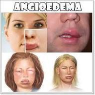 Cara Alami Menyembuhkan Angioedema | Obat Tbc Tradisional | healt | Scoop.it