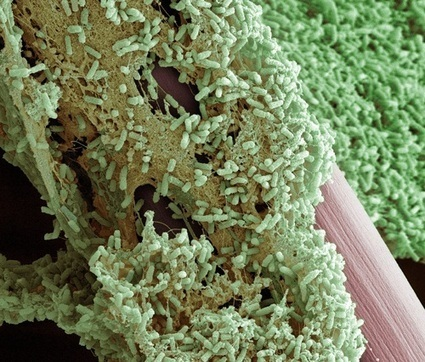 MicroMicrobe • Microbial image of the month This is a great...   Virology and Bioinformatics from Virology.ca   Scoop.it