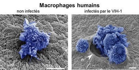 Le VIH favorise sa dissémination en reprogrammant les capacités migratoires des macrophages   Institut de Pharmacologie et Biologie Structure   Scoop.it