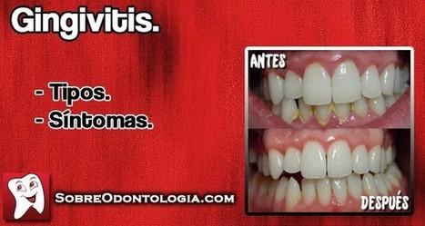 Gingivitis: Tipos y síntomas   Blog de Odontología   Odontología   Scoop.it