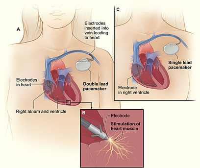 How does a pacemaker work? | New Group 8 | Scoop.it