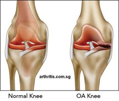 Is Osteoarthritis and Rheumatoid Arthritis one and the same thing? | Rheumatoid Arthritis | Osteoarthritis | Knee Arthritis | Scoop.it