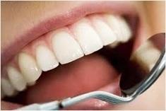 Enjoy ultimate result from Smile60 teeth whitening in Bedford | John Marc | Scoop.it