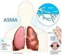 Pengobatan Penyakit Asma Secara Alami Aman Manjur   Pengobatan Alami Untuk Mengatasi Osteoporosis   Scoop.it