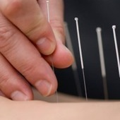 Acupuncture For Low Back Pain | Acupuncturist In Morristown, Acupuncture In Morristown | Scoop.it