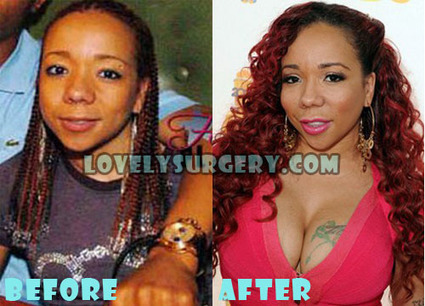 Tameka Cottle Plastic Surgery Before and After Pictures | Celebrity Plastic Surgery | Scoop.it