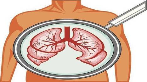 World Kidney Day 2014: Top Tips to Keep Your Kidneys Healthy - LifeHacker India | World Kidney Day - Celebrations | Scoop.it