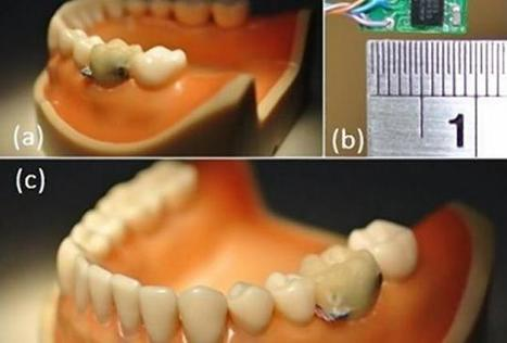 Tooth Sensor Tracks Eating, Drinking, Smoking Habits With 93.8% Accuracy: Could It Lead To Better Health? | myHealthcareWorld | Scoop.it