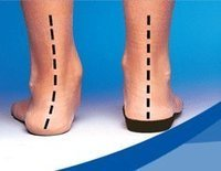 Custom Orthotics in Charlotte NC-Tebby Clinic | Chiropractic Care | Scoop.it
