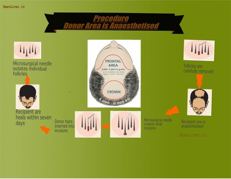 Cost of Hair Transplantation in India & Best Doctors for Hair Transplant | Health Tips | Scoop.it