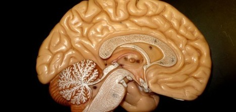 Exploring current state of knowledge about mild cognitive impairment in Parkinson's disease   Chronic Pain, Inflammation, AutoImmune response and Mild Cognitive Impairment   Scoop.it