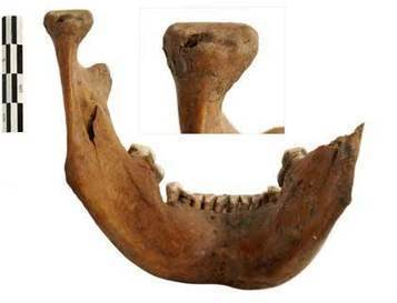 Five gladiator skulls from Londinium 2,000 years ago are about to go on public show   LVDVS CHIRONIS 3.0   Scoop.it