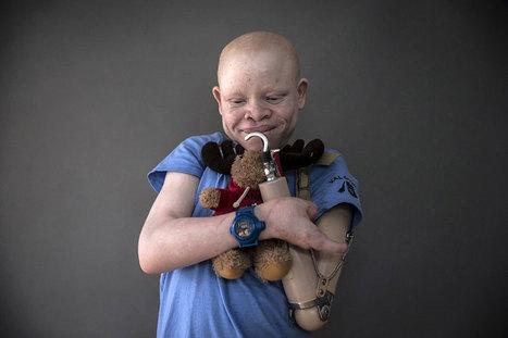 Mutilés en Afrique à cause de leur albinisme, ces enfants retrouvent le sourire dans ce centre qui les a recueillis | 694028 | Scoop.it