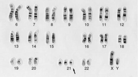 Des chercheurs neutralisent le chromosome surnuméraire responsable de la trisomie 21 | Institut Pasteur de Tunis-معهد باستور تونس | Scoop.it