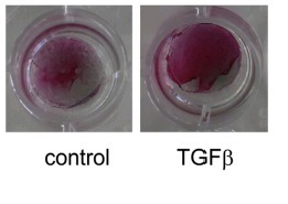 TGFβ functionalized starPEG-heparin hydrogels modulate human dermal fibroblast growth and differentiation | Physiologically Relevant Cell Culture | Scoop.it