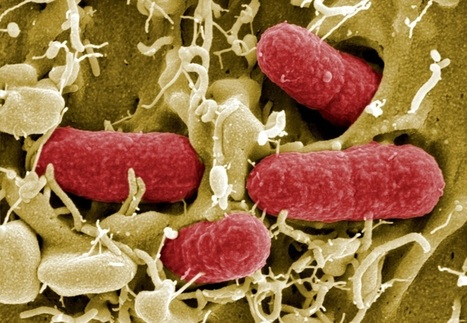 UP Magazine - L'ONU se penche sur les super-bactéries résistantes aux antibiotiques | Alimentation Santé Environnement | Scoop.it