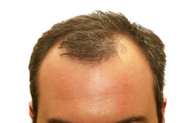 Balding At 20 Linked To Increased Risk Of Prostate Cancer Study Finds | Green Consumer Forum | Scoop.it