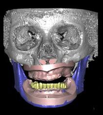 La diagnostica progettuale virtuale nell'implantologia moderna | Dental Implant and Bone Regeneration | Scoop.it