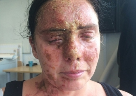 Hampshire acid attack: Brothers arrested - Portsmouth News | The UK | Scoop.it