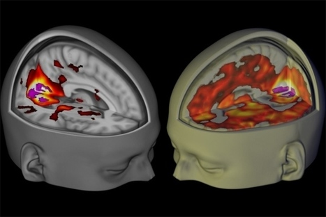 Brain scans reveal how LSD affects consciousness | Embodied Zeitgeist | Scoop.it