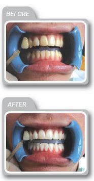 Laser Teeth Whitening Crawley | John Mathew | Scoop.it
