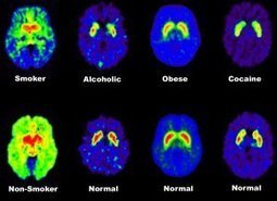 The Brain In Addiction   addiction and its treatment   Scoop.it