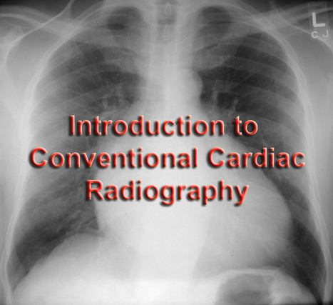 Cardiac Radiography | Medic e-learning Case 4 (Chest Pain) | Scoop.it