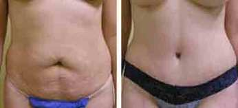 Before And After Photos of Tummy Tuck Plastic Surgery | Renaissance Plastic Surgery | Scoop.it
