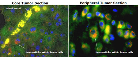Nanoparticles could lead to stronger drugs, fewer side effects for cancer patients   KurzweilAI   Longevity science   Scoop.it