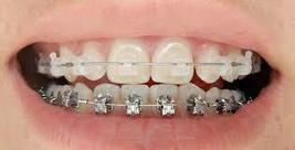 Un adulte peut-il porté un appareil dentaire | Nouveau portail internet | Scoop.it