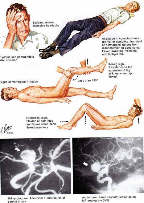 Síndromes Neurológicos. | Educación en gestión servicios alimentación | Scoop.it