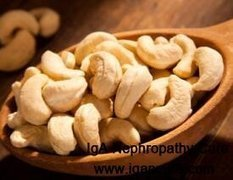 Can We Eat Cashew Nuts with FSGS_IGA Cure   igancure.com   Scoop.it