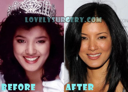Kelly Hu Plastic Surgery Before and After Rumor | Celebrity Plastic Surgery | Scoop.it