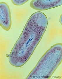 Bacterias: SHIGELLA DYSENTERIAE | ENFERMEDADES TRANSMITIDAS POR ALIMENTOS | Scoop.it