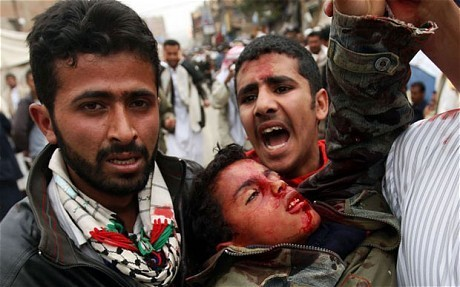 Yemen protests: Evidence snipers shot to kill   Coveting Freedom   Scoop.it