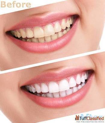 Avail best Laser Teeth Whitening New Delhi at low Cost Hospitals, Clinics South Delhi | Dental Clinic in New Delhi | Scoop.it