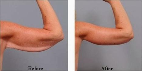 Plastic Surgery In Phuket Thailand: Arm Lift Before And After Photos   Plastic SurgeryPhuket Thailand   Scoop.it