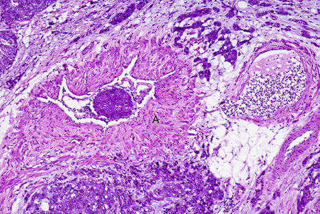 The importance of biopsy in clinically diagnosed metastatic lesions in patients with breast cancer | Breast Cancer News | Scoop.it