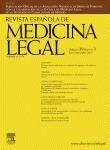 Biomecánica del latigazo cervical: conceptos cinemáticos y dinámicos | biomecánica 2 | Scoop.it