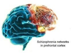 UW scientists make breakthrough in understanding schizophrenia - Puget Sound Business Journal | Technology and Technological Addiction | Scoop.it