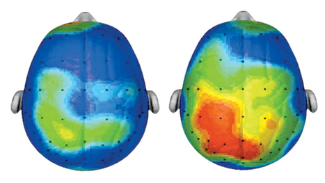 Child's Play: How Physical Activity May Impact Kids' Brains | Playfulness | Scoop.it