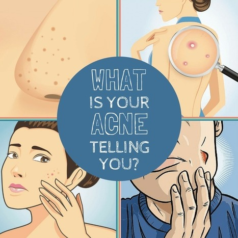 What Does Acne Reveal About Your Health?   Acne Face Map   Natural OTC Hormonal Acne Treatment Remedies   Scoop.it